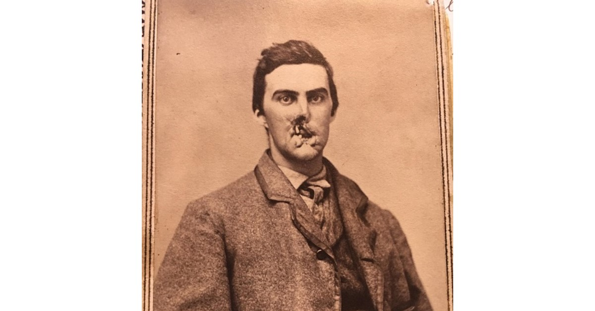 Union Private Oliver Dart Jr. suffered a shrapnel wound in 1861 during the Battle of Fredericksburg that left him with a disfigured lower jaw, mouth and nose. (Courtesy of Alan Crane)