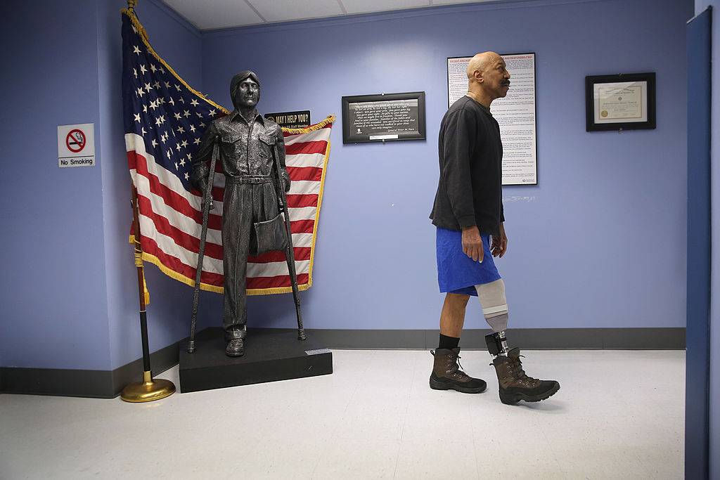 Veteran Lloyd Epps walks after doctors serviced his prosthetic leg at the Veterans Administration hospital on Jan. 29, 2014, in New York City. (John Moore/Getty Images)