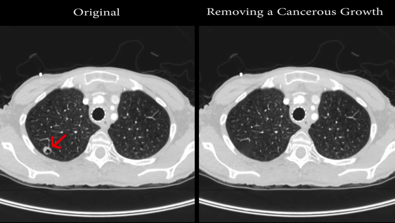 Deep learning is used on the scan at left to produce the image at right, hiding a cancerous growth under malicious code. (Screenshot from YouTube / Kelsey D. Atherton)